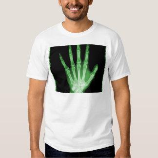 Mano verde del esqueleto de la radiografía remeras