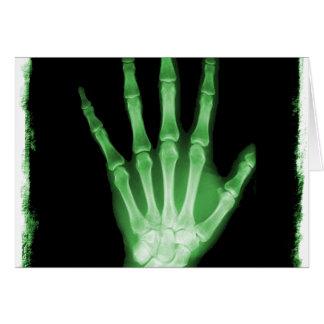 Mano verde del esqueleto de la radiografía tarjeta de felicitación