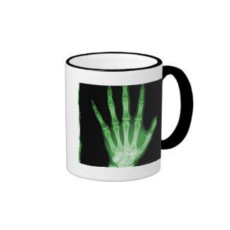 Mano verde del esqueleto de la radiografía taza de dos colores