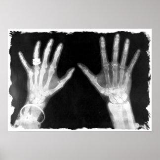 Manos y joyería esqueléticas - B&W de la radiograf Póster