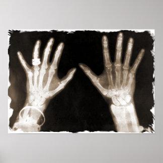 Manos y joyería esqueléticas - sepia de la radiogr póster