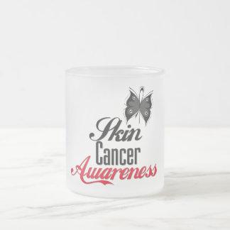 Mariposa de la conciencia del cáncer de piel tazas