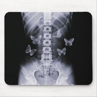 Mariposas conceptuales Mousepad de la radiografía