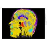 Mark's colorized MRI Greeting Card