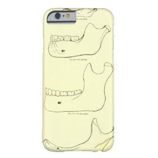 Maxilar inferior de la anatomía el   del vintage funda de iPhone 6 barely there