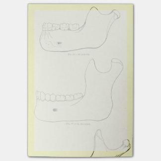 Maxilar inferior de la anatomía el   del vintage notas post-it