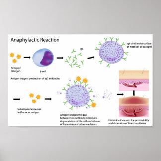 Mechanism of Allergy Poster