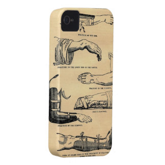 Medical Anatomy Bone Fracture Chart iPhone Case iPhone 4 Cover