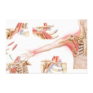 Medical Illustration Detailing Thoracic Outlet Canvas Print