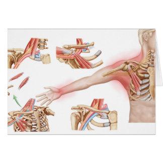 Medical Illustration Detailing Thoracic Outlet Card