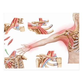 Medical Illustration Detailing Thoracic Outlet Postcard