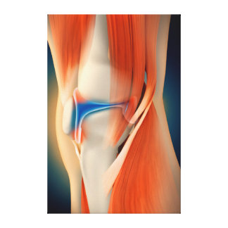 Medical Illustration: Inflammation In Knee Canvas Print