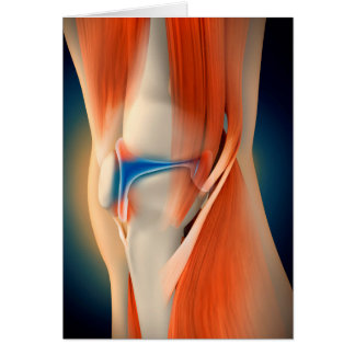 Medical Illustration: Inflammation In Knee Card