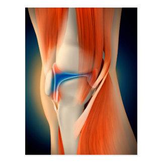 Medical Illustration: Inflammation In Knee Postcard
