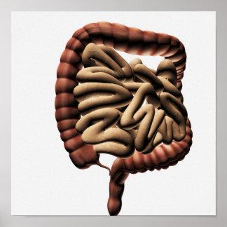 Medical Illustration Of The Large Intestine Poster