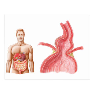 Medical Ilustration Of A Hiatal Hernia In The Postcard