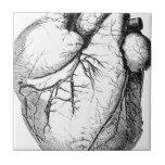 Medical Old heart Ceramic Tile