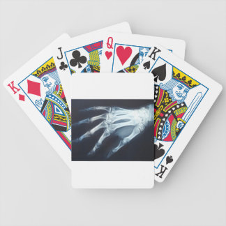 Medical X Ray Imaging Hand Fingers Bicycle Playing Cards