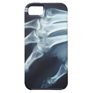 Medical X Ray Imaging Hand Fingers iPhone 5 Case