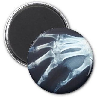 Medical X Ray Imaging Hand Fingers Fridge Magnets