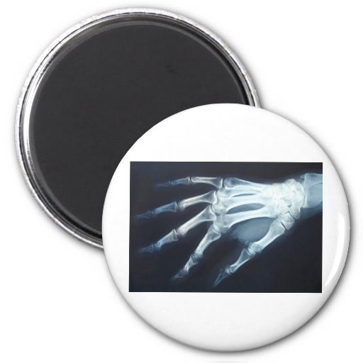 Medical X Ray Imaging Hand Fingers Refrigerator Magnets