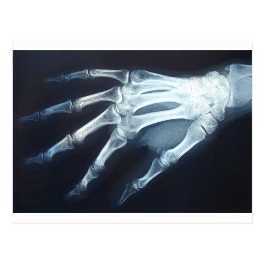 Medical X Ray Imaging Hand Fingers Postcard
