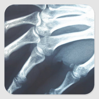 Medical X Ray Imaging Hand Fingers Square Sticker
