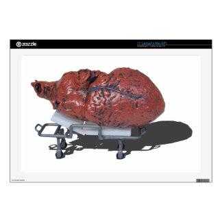 """MedicalHeartOnGurney092715.png 17"""" Laptop Skins"""