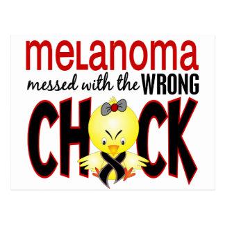 Melanoma ensuciado con el polluelo incorrecto tarjetas postales
