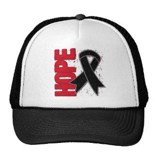 Melanoma Hope Grunge Ribbon Trucker Hat