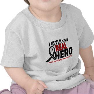 Melanoma NEVER KNEW A HERO 2 Daddy Shirts
