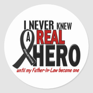 Melanoma NEVER KNEW A HERO 2 Father-In-Law Classic Round Sticker