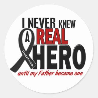 Melanoma NEVER KNEW A HERO 2 Father Classic Round Sticker