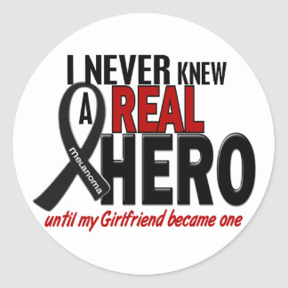 Melanoma NEVER KNEW A HERO 2 Girlfriend Classic Round Sticker