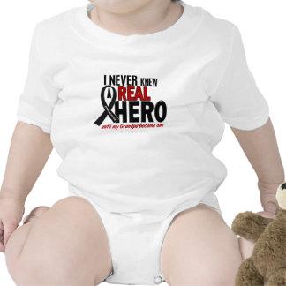 Melanoma NEVER KNEW A HERO 2 Grandpa Bodysuit