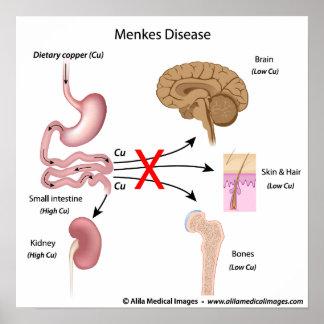 Menkes syndrome, labeled diagram. print