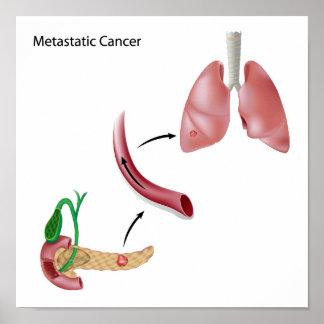 Metástasis del cáncer a través del poster de la ci