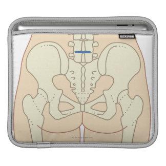 Microdiscectomy iPad Sleeves