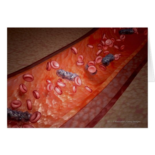 Microscopic rendering of a blood infection card