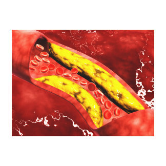 Microscopic View Of Fat Plaque Inside The Artery Canvas Print