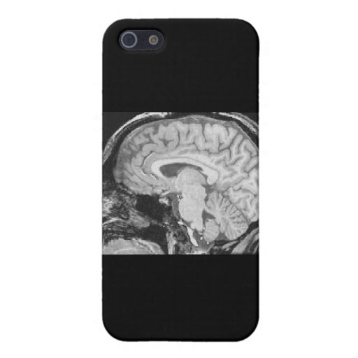 Mid-sagittal MRI Cover For iPhone 5