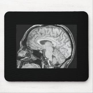 Mid-sagittal MRI Mouse Pad