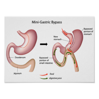 Mini gastric bypass surgery Poster