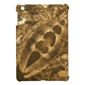 Miocene limestone under the microscope case for the iPad mini