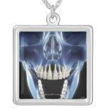Mirada del estilo de la radiografía en los dientes grimpolas