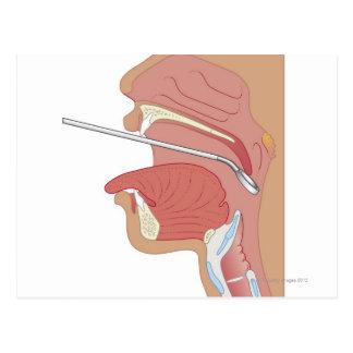 Mirror Laryngoscopy Postcard