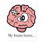 Mis daños del cerebro postal