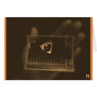 Miscarriage sympathy card