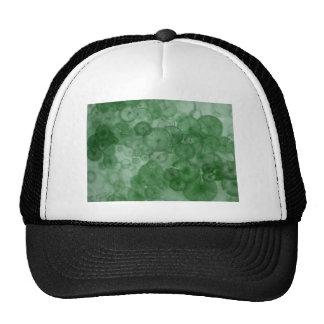 Mitosis (green) as seen in RipRap Journal Trucker Hat