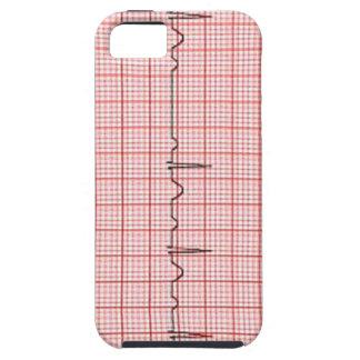 mobitz 1 wenkebach iPhone SE/5/5s case